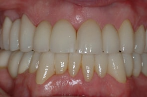 DS after full mouth reconstruction