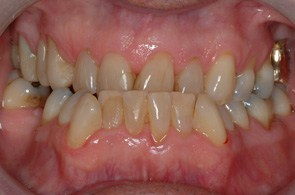 DS before full mouth reconstruction