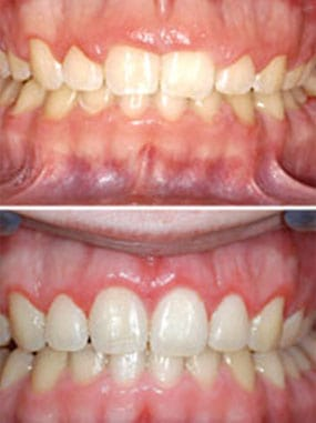 gum recontouring treatment