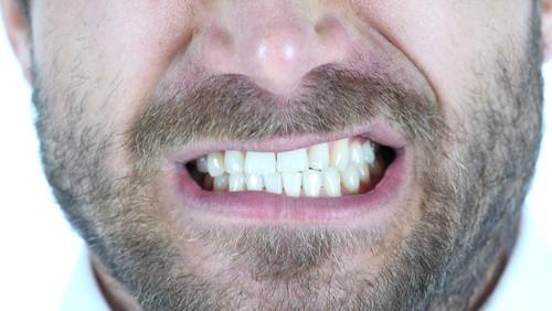 man grinds his teeth